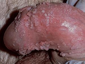 Телесного цвета плотные сосочковые разрастания (кондиломы) на коже полового члена вызвал вирус папилломы у мужчин