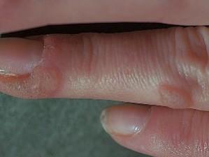 Крупные сероватые шершавые бляшки, одна возле ногтя, другая на фаланге - бородавки.