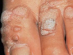 Крупные шершавые бляшки телесного цвета на тыльной поверхности пальцев. Обычные бородавки.