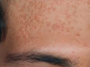 Бородавки на лице из-за папилломавируса. Мелкие возвышающиеся бляшки желтоватого оттенка.