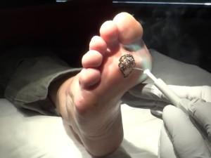 Бородавка удалена лазером, осталась рана под черной коркой.