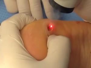 Округлая рана формируется в процессе удаления лазером. Выделяется большое количество дыма и пара.