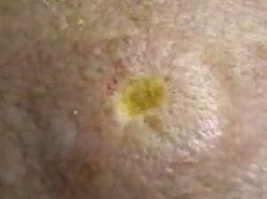 Рана после удаления бородавки лазером в виде ямки, дно которой имеет желтый цвет, сухое.