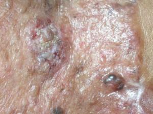 Два очага рака кожи. Один маленький темный и блестит. Второй побольше с признаками уплотнения, бугристый, шелушится.