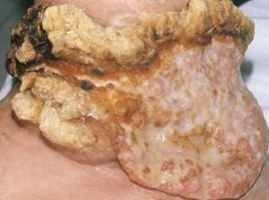 Очень большой нарост на ноге, с корками, буграми, сочится, кровоточит. Рак кожи, похожий на бородавку.