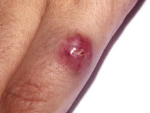 Карцинома Меркеля имеет вид красного уплотнения в коже. Не болит, не кровоточит, похоже на укус насекомого.
