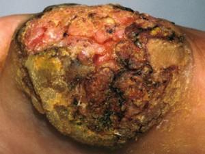 Рак кожи в виде бородавки с плотными корками, наростами, уплотнением. Кровоточит, болит при ходьбе.