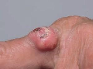 Плоскоклеточный рак кожи, похожий на кератоакантому, появился на пальце кисти
