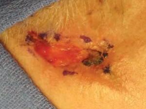 Рак кожи имеет признаки язвы, которая мокнет, покрывается корочками, кровоточит.