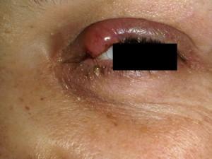 Узелок на верхем веке, похож на коъюнктивит, не болит, растет - это рак сальной железы.
