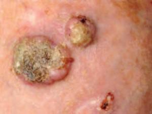 Несколько бляшек плоскоклеточного рака кожи с желтыми наростами. Уплотнены, бугристые.