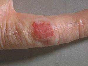 Розовая пятно на пальце руки с неправильными фестончатыми краями, чуть больше 2-х см в диаметре. Начальные признаки рака кожи.