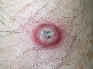 Круглая красная шишка в центре имеет роговой желтый нарост, плотная, шершавая. Переходит в рак кожи.