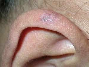 Пятнышко на коже темного цвета, неправильной округлой формы с фестончатыми краями. рак кожи начальной стадии.