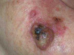 Нарост на коже с желтыми корками, постепенно растет, не болит. Это рак кожи.