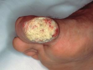 Фото грязно-коричневый нарост на пальце стопы, похож на бородавку, кровоточит. Веррукозная карцинома - бородавчатый рак кожи