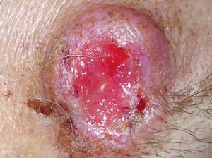 Нарост с уплотнением красного цвета. В центре язва. Это рак кожи второй стадии.