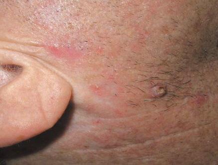 плоскоклеточный высокодифференцированный рак