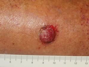 Фото розовой шишки с обильным кровотечением. Быстро растет, может болеть. Рак кожи низкодифференцированный.