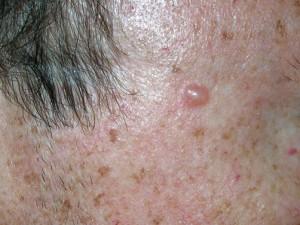 Маленькая шышечка на коже, блестит, легко кровоточит, если задеть. Начальные признаки рака кожи.