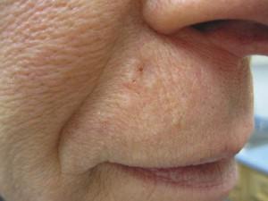 Блестящие бугорки на коже, почти незаметны. Базальноклеточный рак кожи.