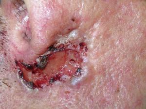 Фото язвы с возвышающимися краями, кровянистыми корочками. Не заживает, не болит, кровоточит. Это базальноклеточный рак кожи.