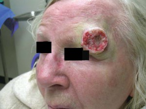 Рак кожи в виде бугристой бляшки, вокруг отек и побеление