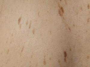 Наросты на коже в виде шершавых коричневых родинок. Фото себорейного кератоза.