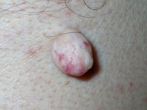 На фото белая мягкая шишка - нарост на коже.