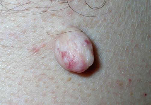 Папилломавирус лечение форум