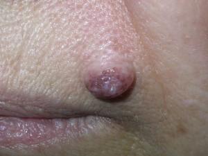 Плотная светлая шишка нарост на лице, основание толстое. Интрадермальный невус.
