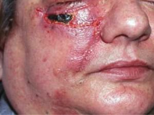 Участак почернения кожи после удаления рака и перемещения лоскутов.