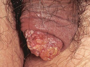 Наросты на головке полового члена, похожи на кондиломы - на самом деле, рак.