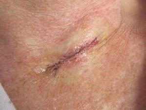 Рана зашита после хирургического удаления рака кожи. Слегка красновата и отечна.