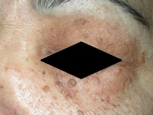 Светло - коричневые наросты на коже лица. Похожи на папилломы. Эти родинки - себорейный кератоз.