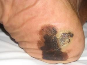 Пятно грязной черно - коричневой окраски на пятки. Акральная меланома кожи.