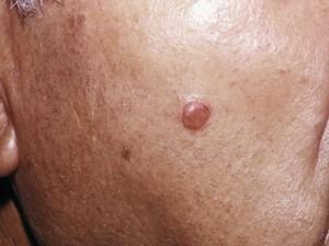 Телесного цвета уплощенный узел десмопластическая меланома.