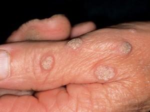Бородавки на руках в виде шершавых шишечек на пальцах.