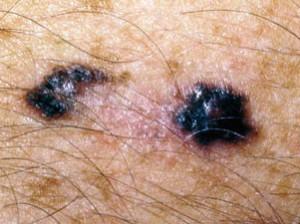 Меланома кожи в виде пятна в центре светлая, по бокам черная.