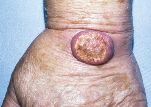 Вирус папилломы человека 16 и 18 типа что это такое