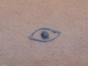 Голубой пигментный невус на фото обвели карандашом для удаления.