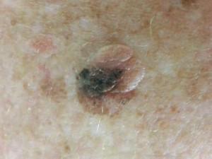 Темное пятно на светло родинке, похожей на папиллому. Это меланома во внутридермальном невусе.