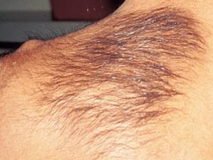 невус Беккера на спине с бурным ростом волос но телесной окраски.