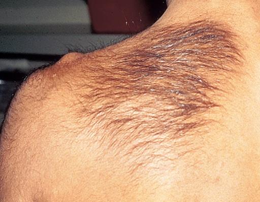 Лечение папилломавируса 16 типа