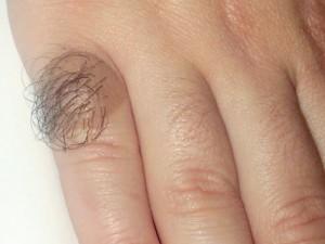 Врожденный пигментный невус в виде коричневого пятна, покрытого волосами.