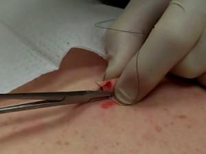 На фото удаление невуса хирургическим путем.