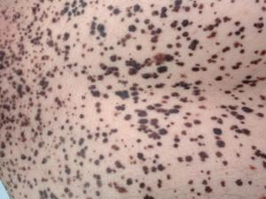 Много черных невусов на теле, плоских, с переходной окраской и нечеткими контурами.