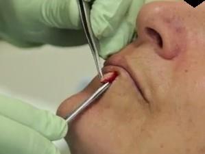 На фото удаление невуса хирургическим методом.