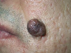 Внутридермальный невус на коже лица, пигментный.