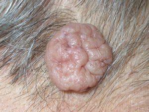 Внутридермальный невус в форме висячей родинки на шее телесного цвета.